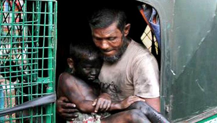 Burn-Bangladesh